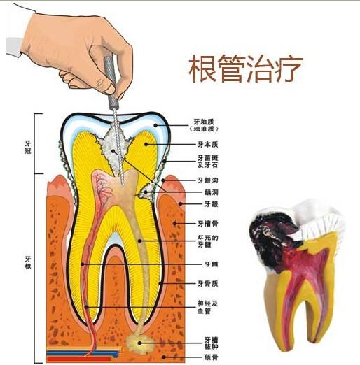 牙齿的解剖结构图